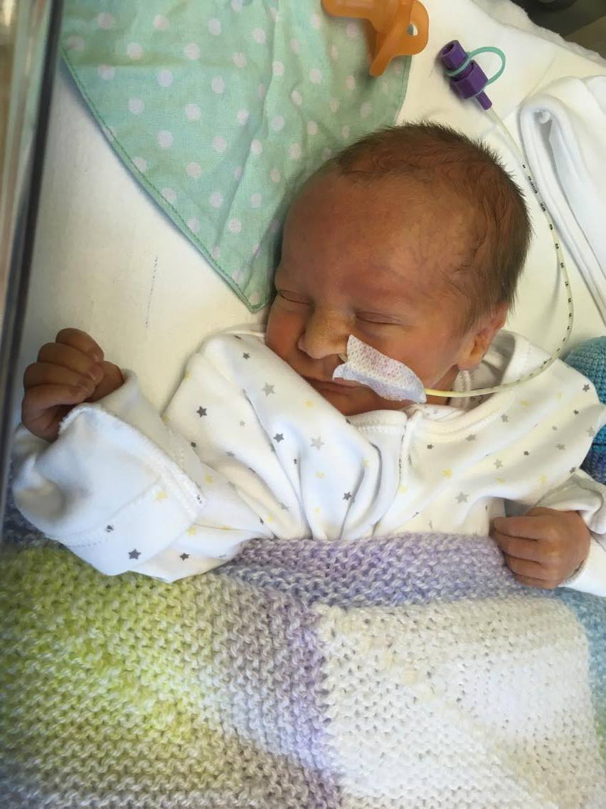 premature baby in NICU iwth feeding tube in his nose