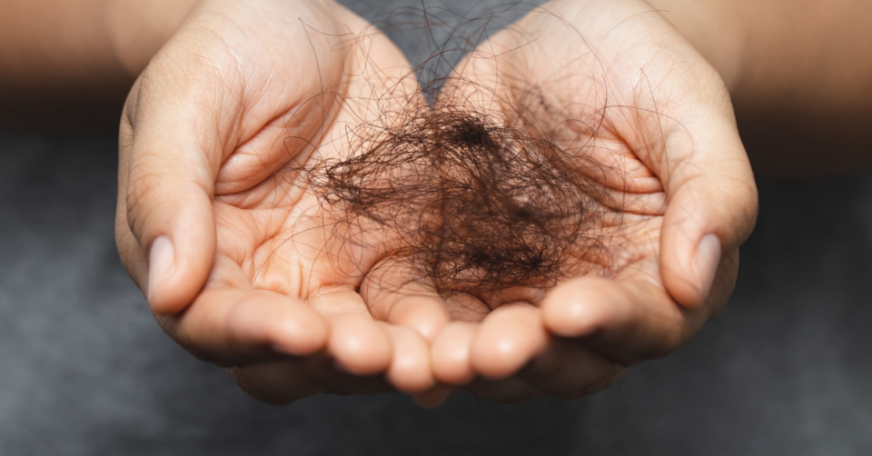 hair loss in a ladies hand
